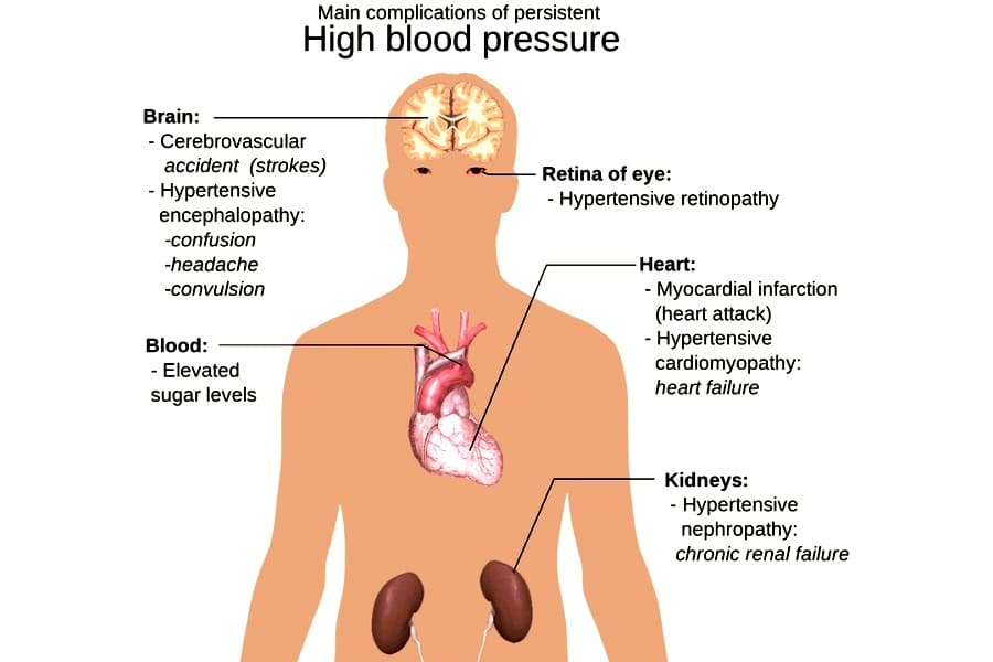 Complications of High Blood Pressure or Hypertension