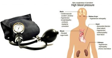 Living with Alternatives to Medicine for High Blood Pressure or Hypertension