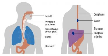 Detail Guide on Esophageal Cancer: Symptoms, Causes, and Preventions