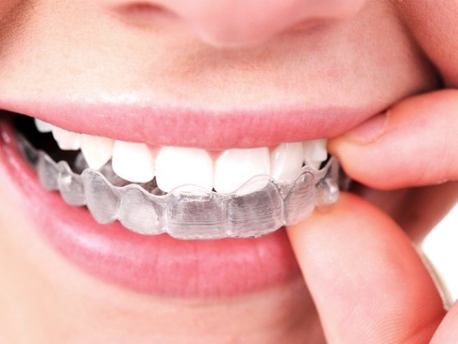 Los Angeles Invisalign