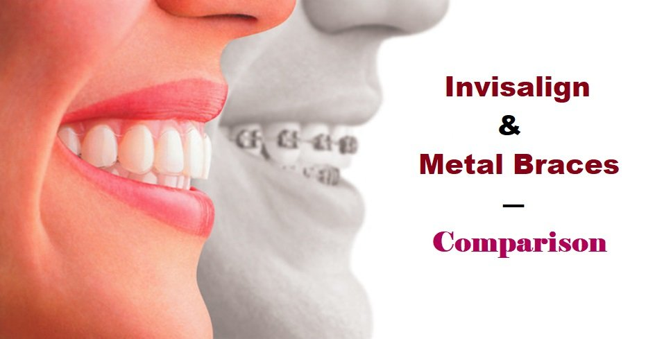 Invisalign & Metal Braces - Comparison